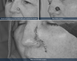 """Three pictures in black and white that show the progression of Becky's skin cancer. The first picture shows a close up of the """"pearly papule,"""" circled with a pan mark before surgery. The second picture shows an open wound in the same spot after the Mohs surgery removed the cancerous cells. The third picture shows a 3 inch skin flap sewed up with stiches to cover the effected area."""